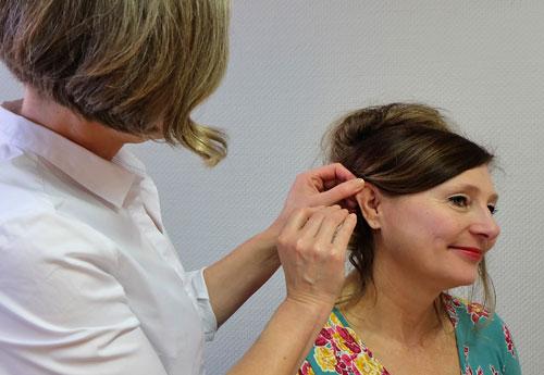 foto akupunktur